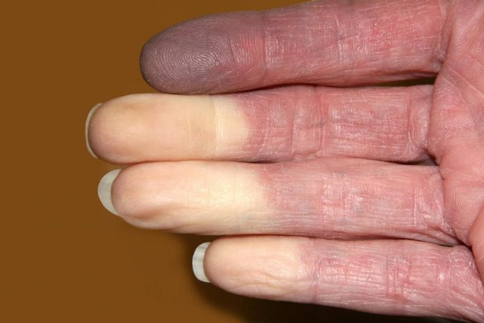 Raynaud's disease affected hand photo
