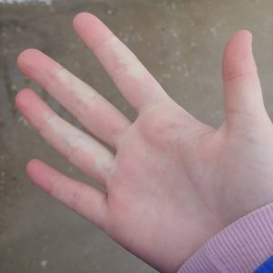 Different Types of Raynaud's
